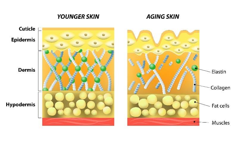 若い皮膚と老いた皮膚。エラスチンとコラーゲン。若い皮膚と老いた皮膚の図で、老いた皮膚のコラーゲンの減少とエラスチンの折れを示す。