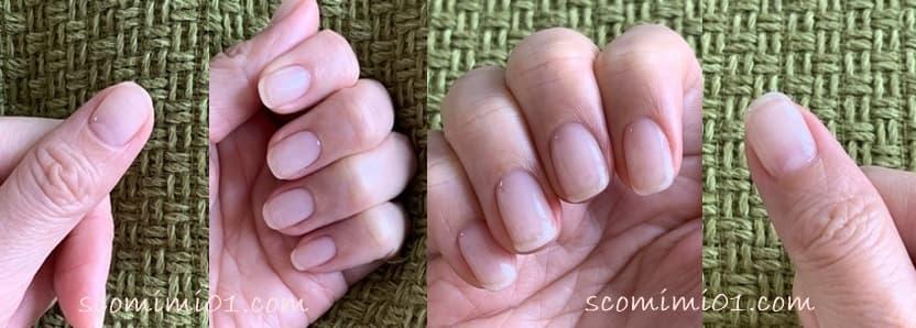 室長すこみみの現在の爪。ピンクの部分が大きい。