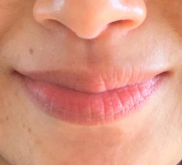ブビブビリップで角質取りが完了した唇。自然な赤みでツルンとしています。