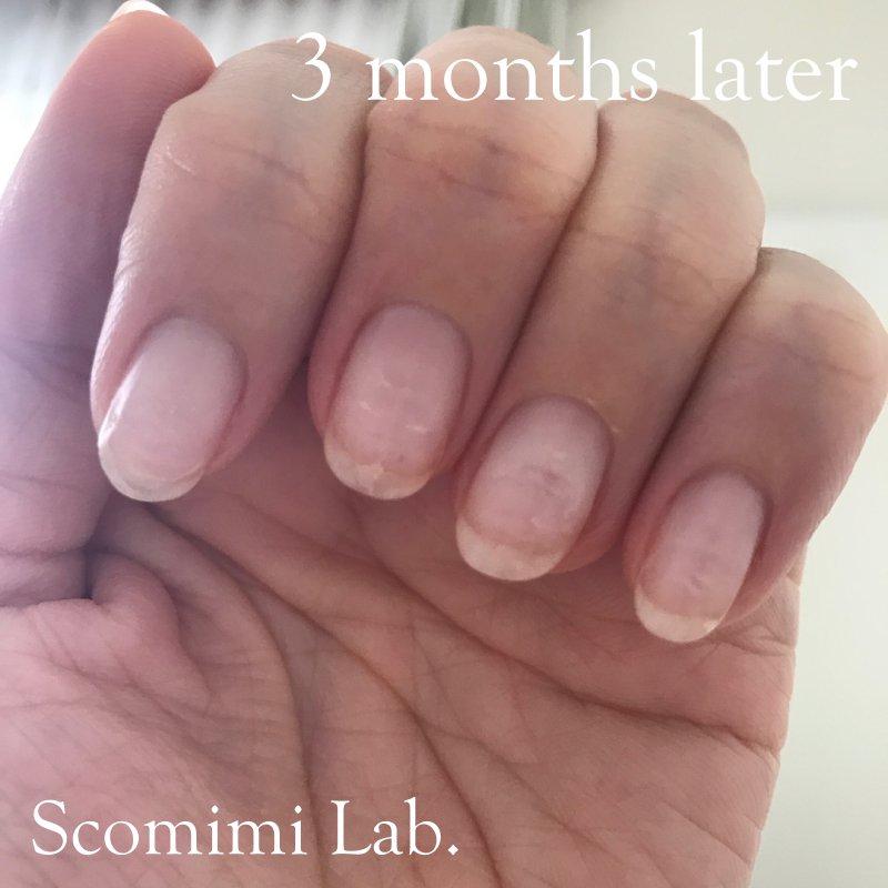 筆者のケア3か月後の爪